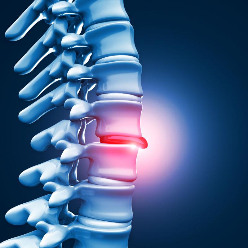 Chirurgie spinală minim invazivă