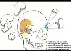 """Rezident neurochirurg moldovean, întors recent de la un stagiu în București: """"Visul meu este de a aduce o nouă tehnică operatorie în neurochirurgia autohtonă"""""""